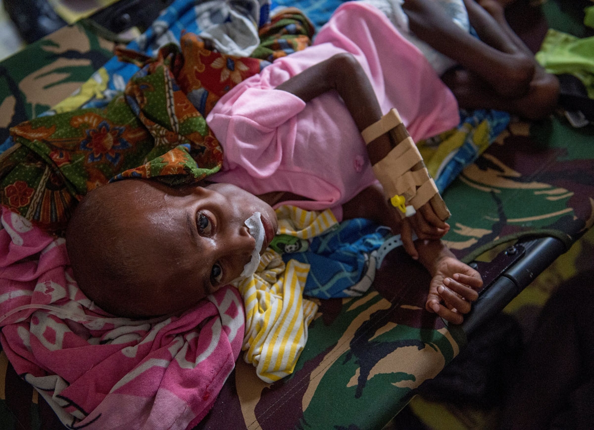 A Papuan child suffering from malnutrition lies in a hospital bed for treatment in Agats, the capital of Asmat district in Indonesia's easternmost Papua province, on January 26, 2018.