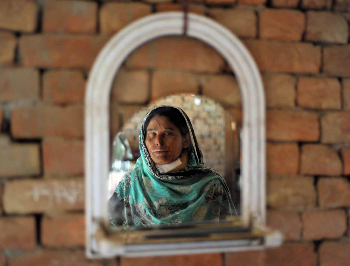 Acid attack victim Asiya Bibe, 35, is seen in a mirror as she poses at her residence at Bahawalpur district in Multan on March 16, 2012.