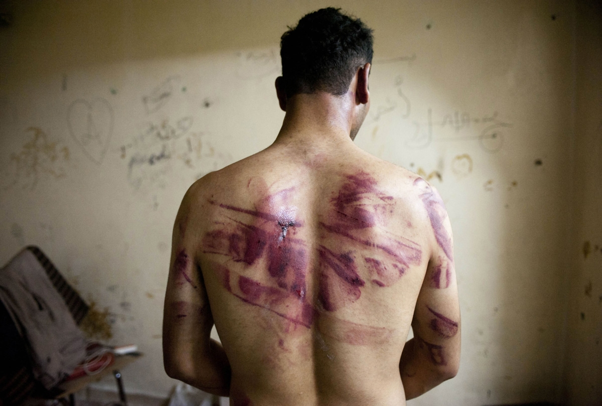 A Syrian man shows marks of torture on his back, after he was released from regime forces, in the Bustan Pasha neighbourhood of Syria's northern city of Aleppo on August 23, 2012