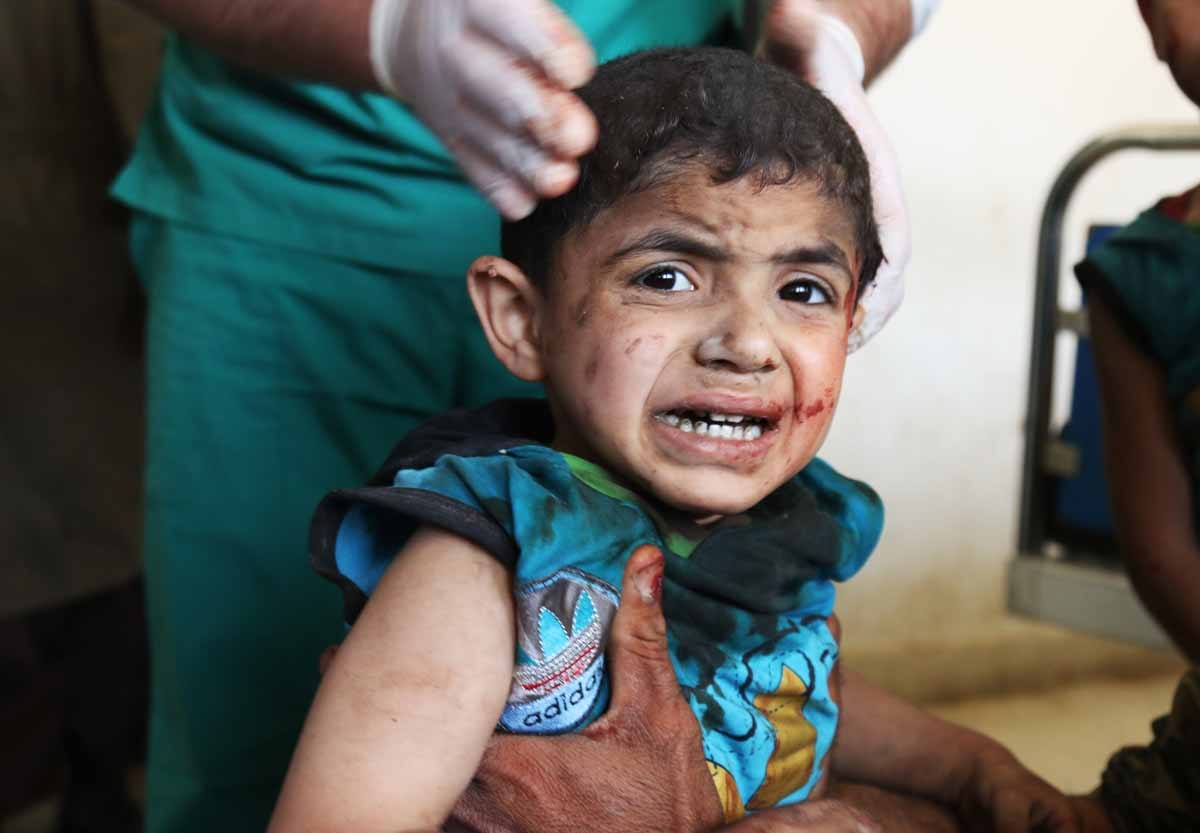 A Syrian child receives treatment at a makeshift hospital following an air strike on a vegetable market in Maaret al-Numan, in Syria's northern province of Idlib, on April 19, 2016.