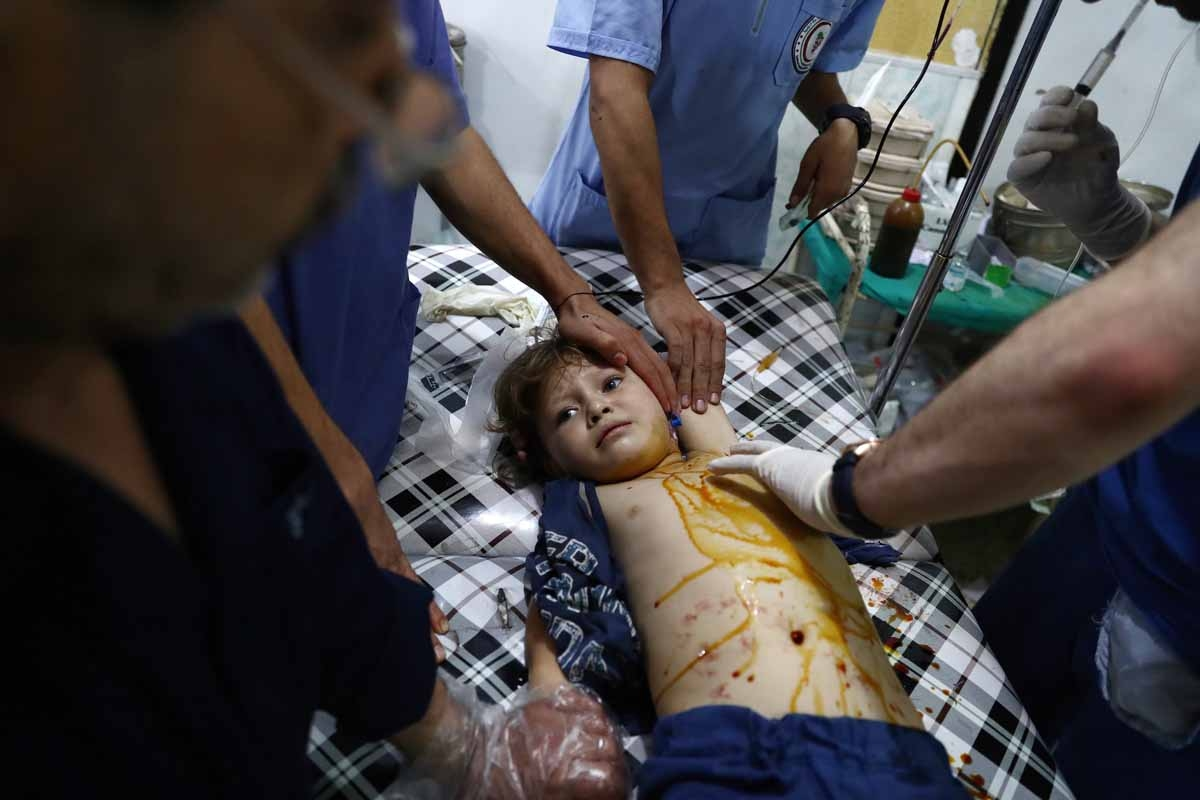 An injured Syrian child receives treatment at a makeshift hospital following a reported air stike on the rebel-held town of Douma, east of the capital Damascus, on August 21, 2016.