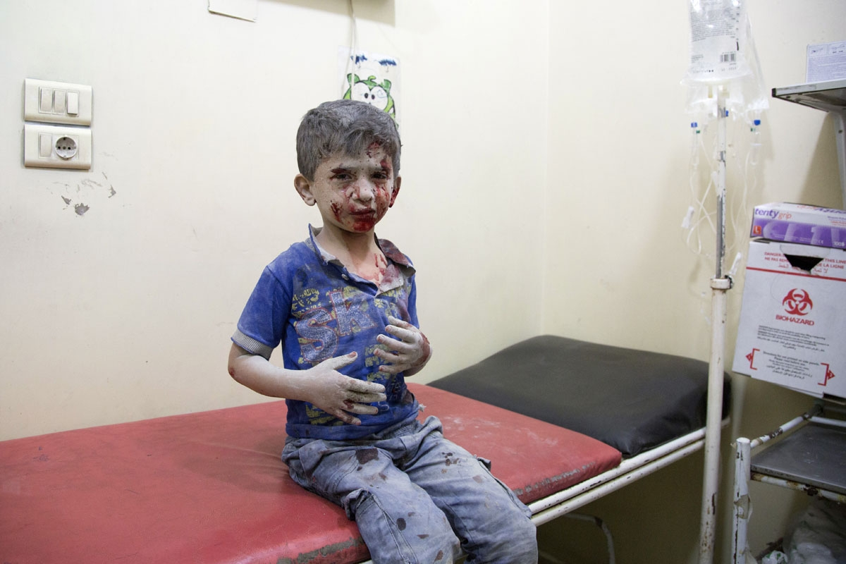 A Syrian boy awaits treatment at a make-shift hospital following air strikes on rebel-held eastern areas of Aleppo on September 24, 2016.