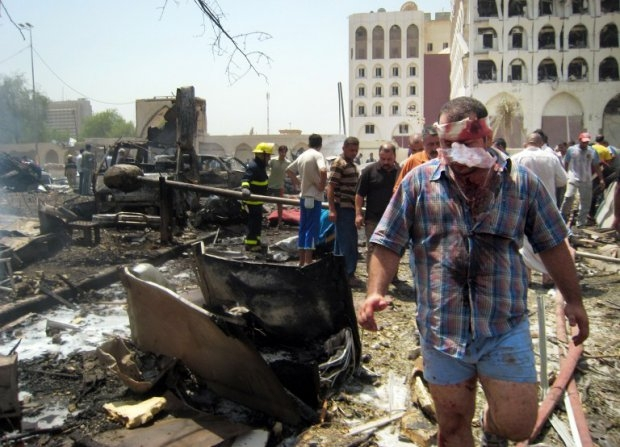 A wounded man leaves the scene of a massive explosion outside the foreign ministry in a residential area close to the Green Zone in central Baghdad on August 19, 2009.