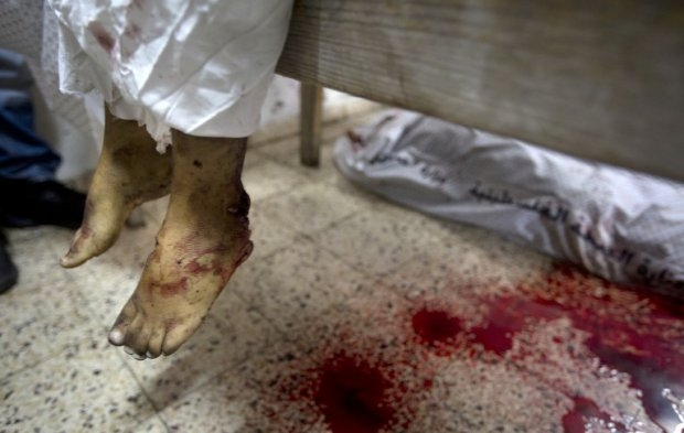 The bloodied legs of a dead child are seen in the morgue at the al-Shifa hospital in Gaza City, on July 20, 2014.