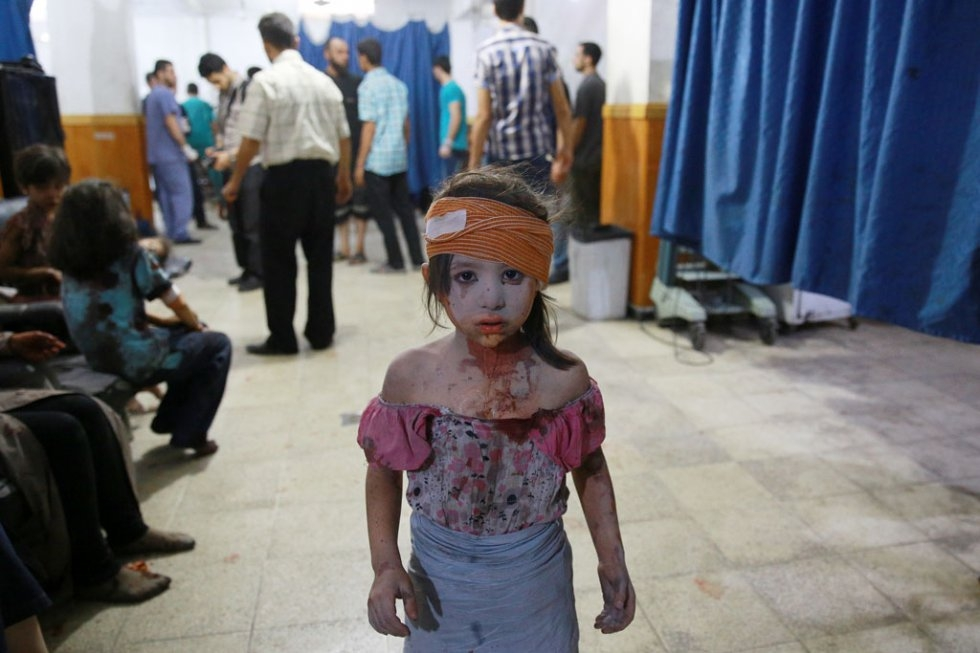 A wounded Syrian girl in a makeshift hospital in Douma, following shelling and air raids by Syrian government forces on August 22, 2015