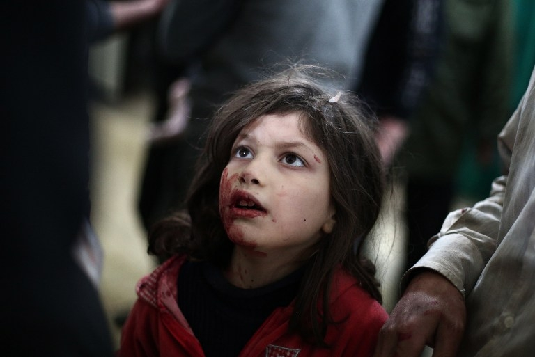 An injured Syrian girl at a makeshift clinic in Douma, Syria on February 5, 2015