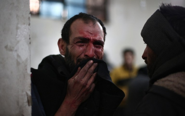 A Syrian man awaits treatment at a makeshift clinic in Douma, Syria on February 5, 2015