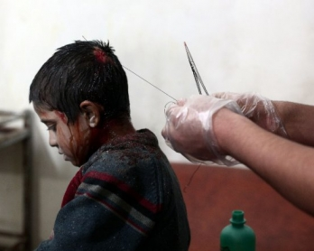 A medic stitches the head of a wounded boy at a makeshift clinic after a mortar fired by Syrian government forces fell in the besieged rebel town of Douma, in the outskirts of Damascus, on November 11, 2014